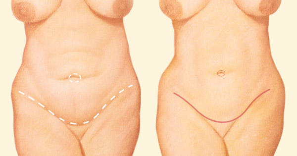 tummy tuck incision lines diagram