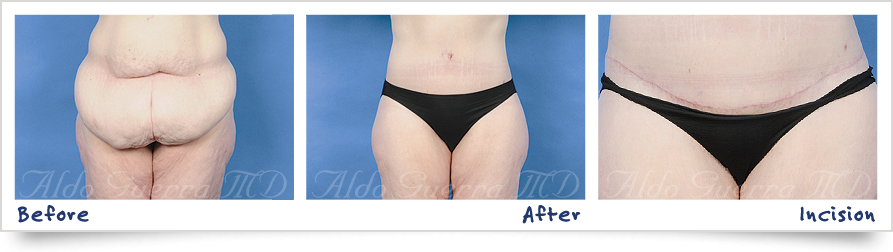 before and after photo of tummy tuck with dermabond
