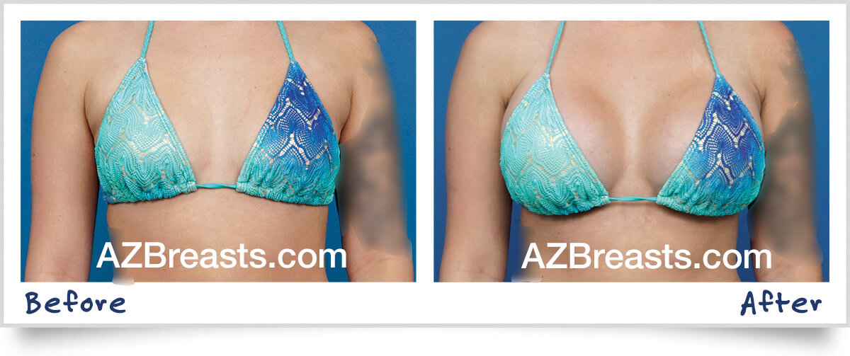 Expert Tips on Choosing the Best Breast Implant Size for Your Body