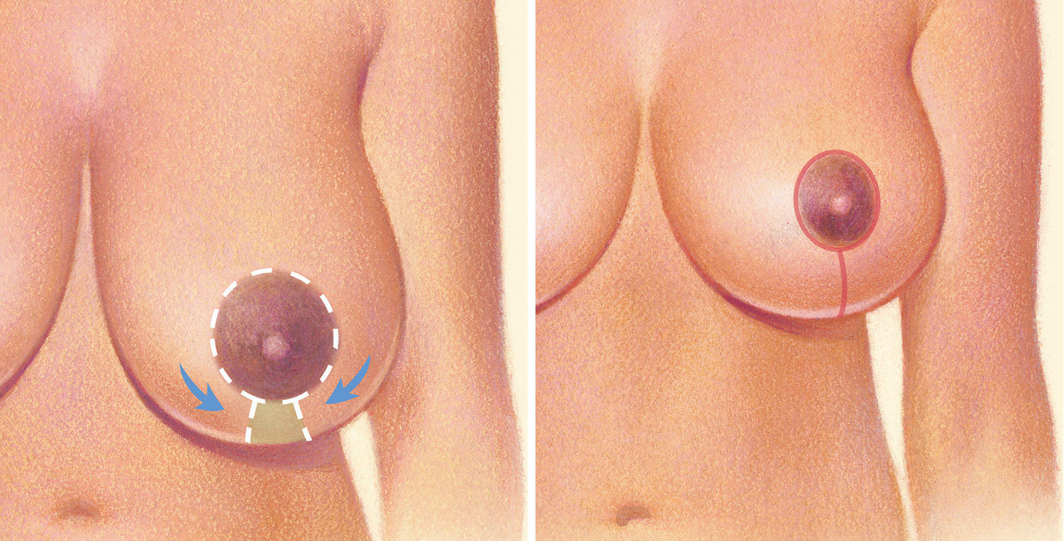 diagram of breast lift