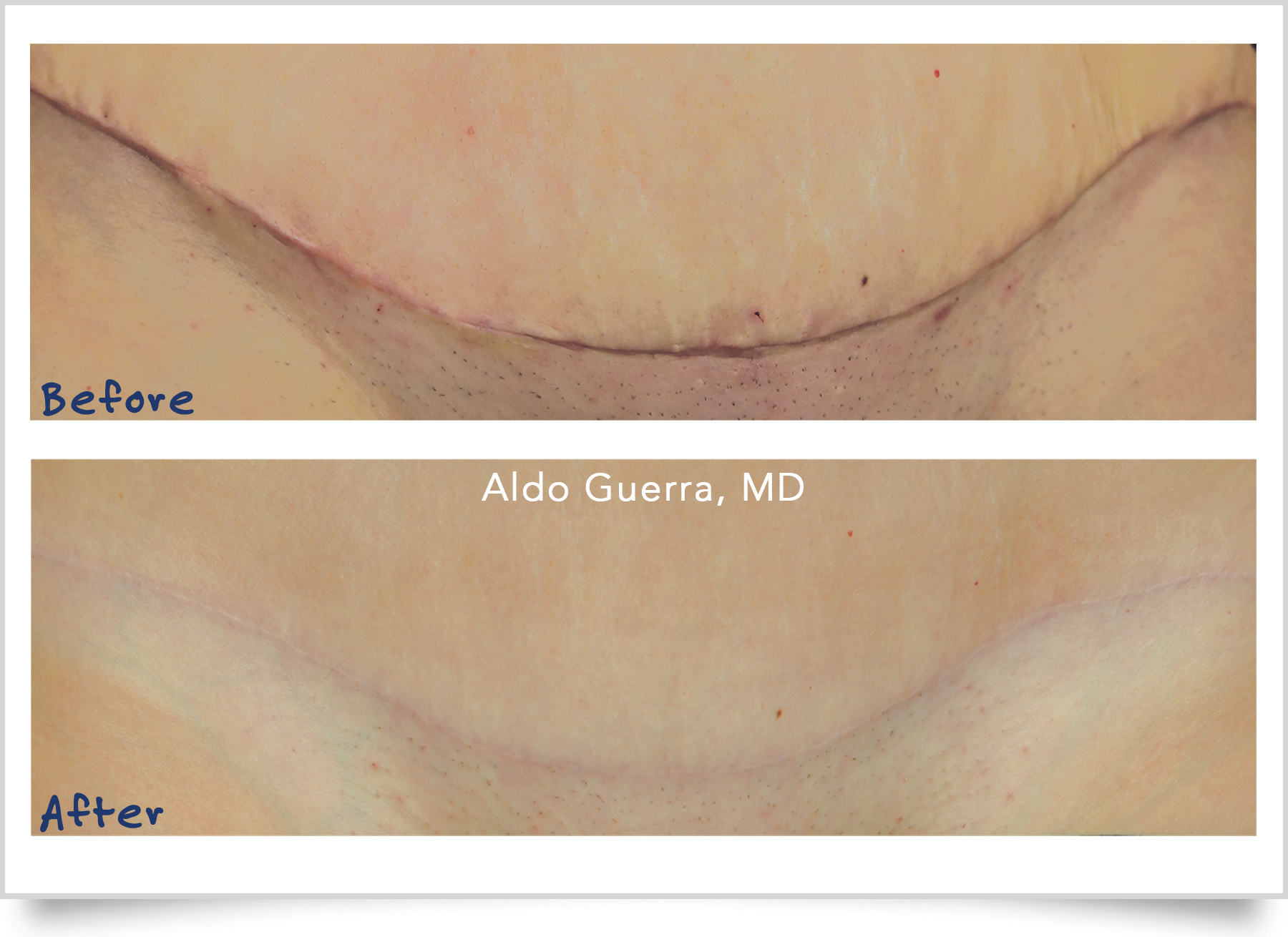 tummy tuck incision treated by embrace