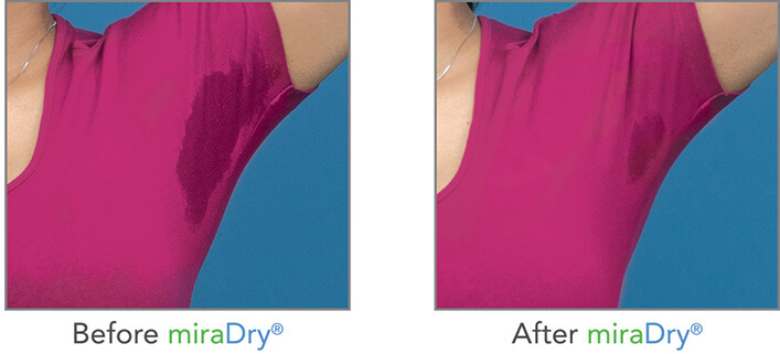 No Sweat, No Problem: How To Get Rid Of Excessive Sweating