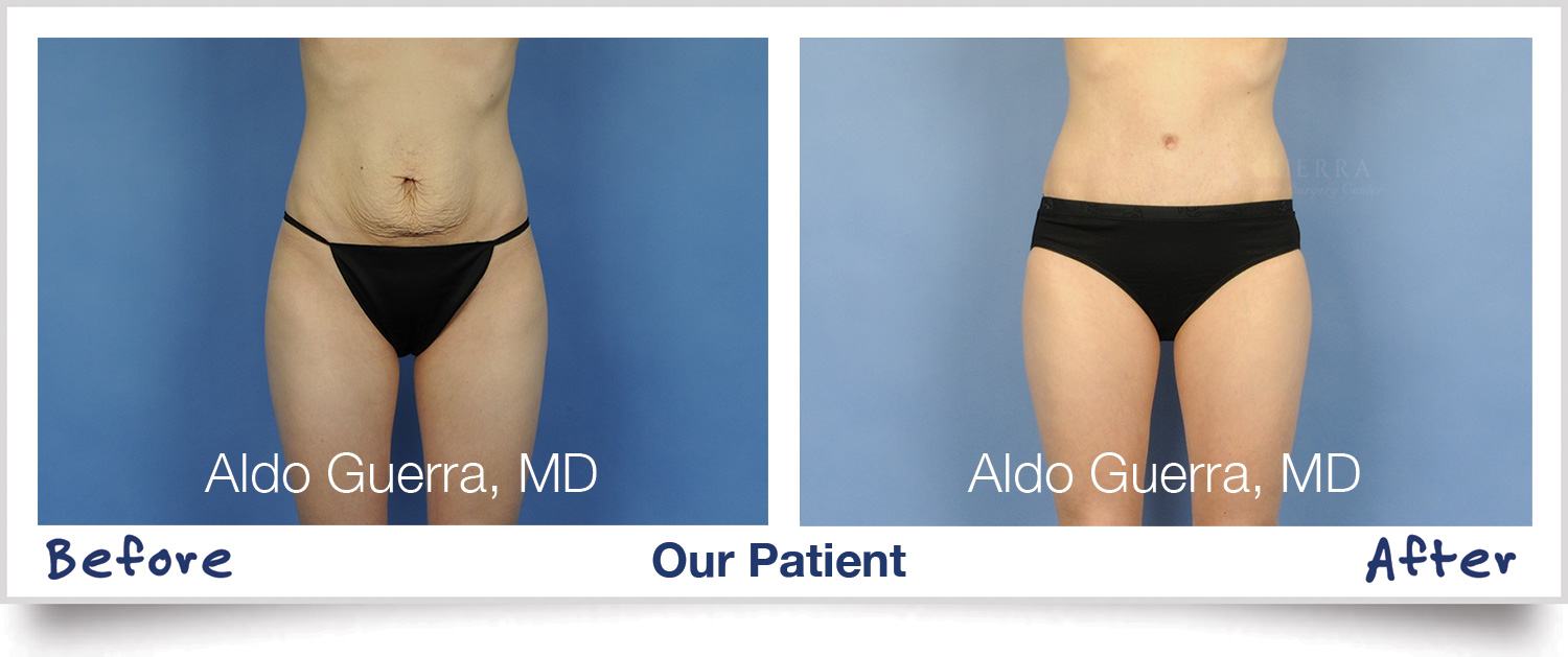 Maintaining Your Weight After a Tummy Tuck