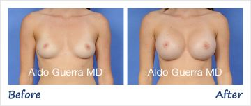 Before and After MemoryGel Breast Implant