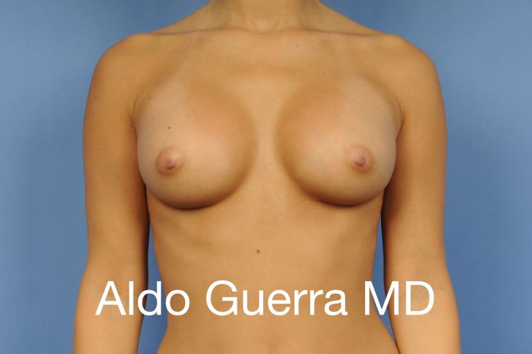 Silicone Implants Results by Aldo Guerra