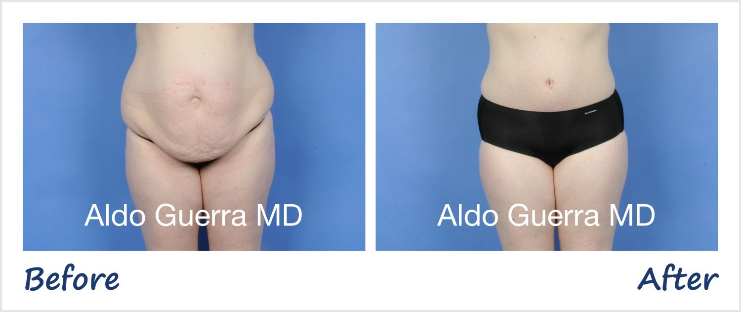 Guerra Plastic Surgery University: Tummy Tuck Educational Series on Visceral Fat